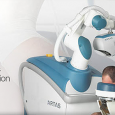 TheFollicular Unit Extraction(FUE) technique is one of the most innovative and popular methods of hair transplantation available. With the ability to move individual hair follicles as opposed to larger strips […]