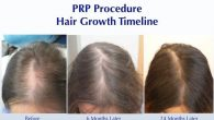 If you are a woman suffering from temple recession or overall female pattern baldness, a treatment for thinning hair may be very much on your mind. You may have heard […]