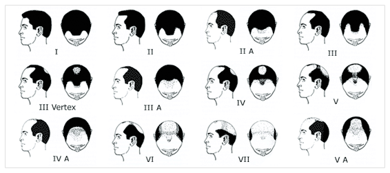 The Hamilton-Norwood Scale, better known simply as the Norwood Scale, is a way of measuring and categorizing male pattern baldness using an illustrated representation of the progression of hair loss […]