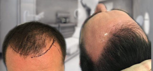 For those who are experiencing hair loss, the promise of restoring hair loss is very exciting, especially being able to get a natural, thick hairline. One of the biggest concerns […]