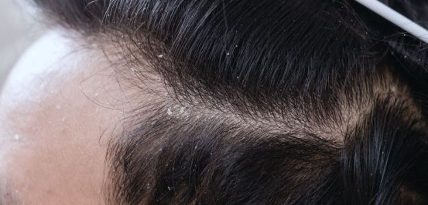 Whether you notice white flakes in your hair or on your shoulders, few hair-related issues are as much of an annoyance as dandruff. Dandruff is the result of a dry […]