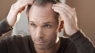 Hair restoration in San Diego, CA , has come a long way over the years. From the only option being to wear a toupee or simply accept baldness to advanced […]