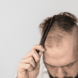 This post is authored by top hair stylist Matthew Curtis, who explains the best ways men can style thinning hair. THE PROBLEM: THINNING HAIR DO KEEP HAIR SHORT AND TEXTURED […]